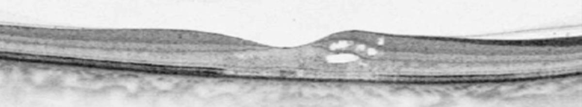retine-2
